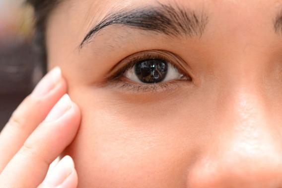 Как убрать отек глаз?