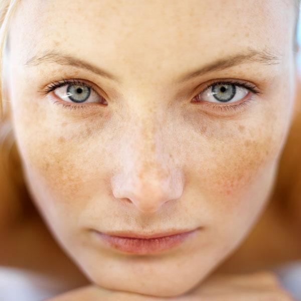 Как убрать пигментные пятна на лице в домашних условиях?