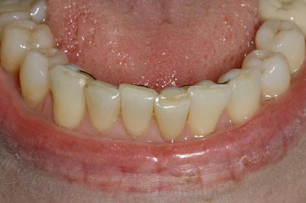Как восстановить эмаль зубов?